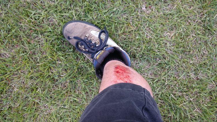 下り坂で転んで足を広範囲で擦り傷